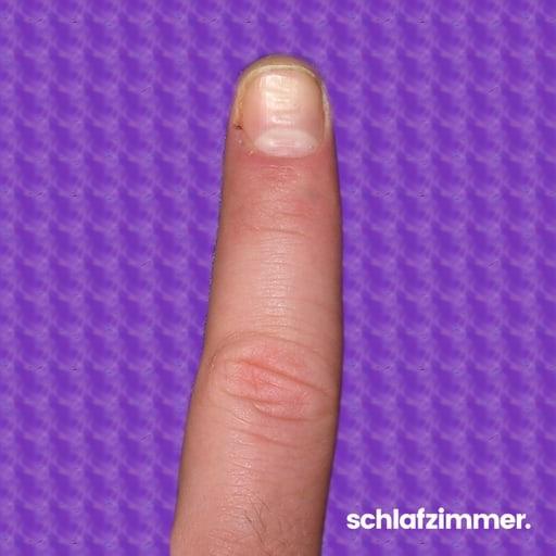 schwarze fingernägel bedeutung