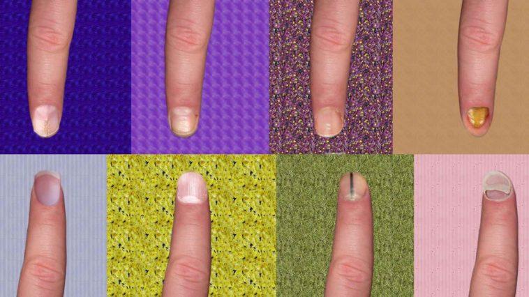 Diese 8 Fingernagel Krankheiten Musst Du Unbedingt Beachten