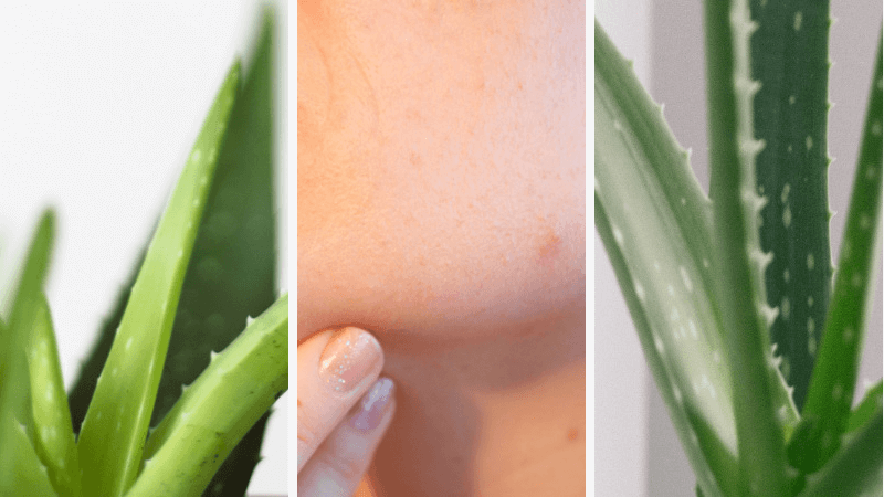 Aloe Vera Gegen Pickel 6 Tipps Für Eine Perfekte Anwendung