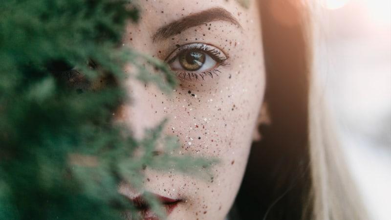 Akne- Behandlung, Usachen und Präventionsmaßnahmen