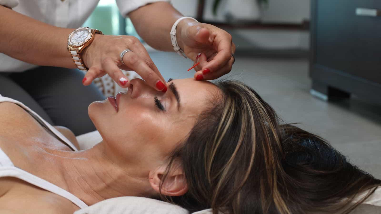 Akupunktur bei Haarausfall- Ist die Behandlung effektiv und sinnvoll?