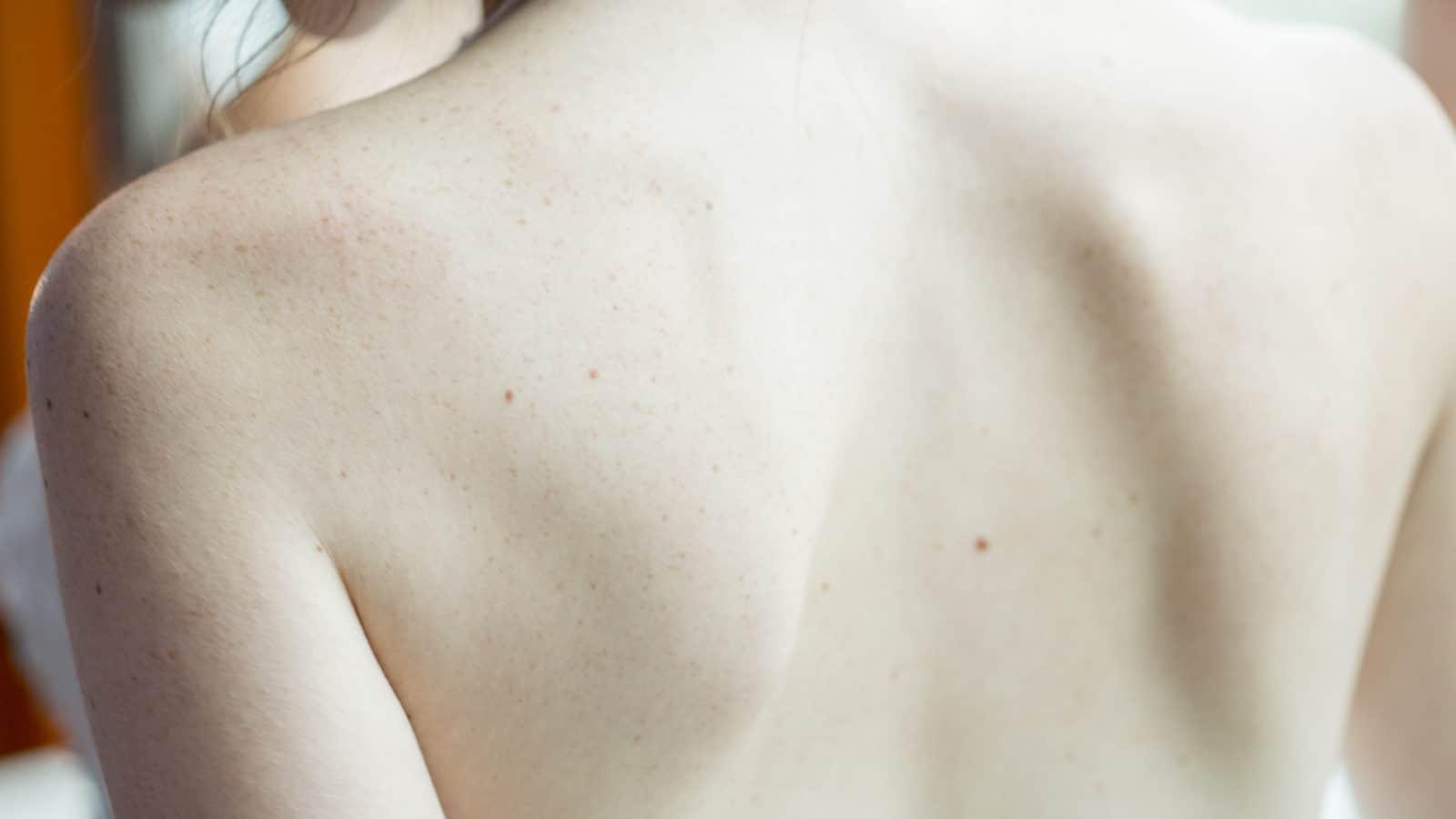 5 Tipps, deine trockene und rissige Haut in kalten Monaten zu schützen