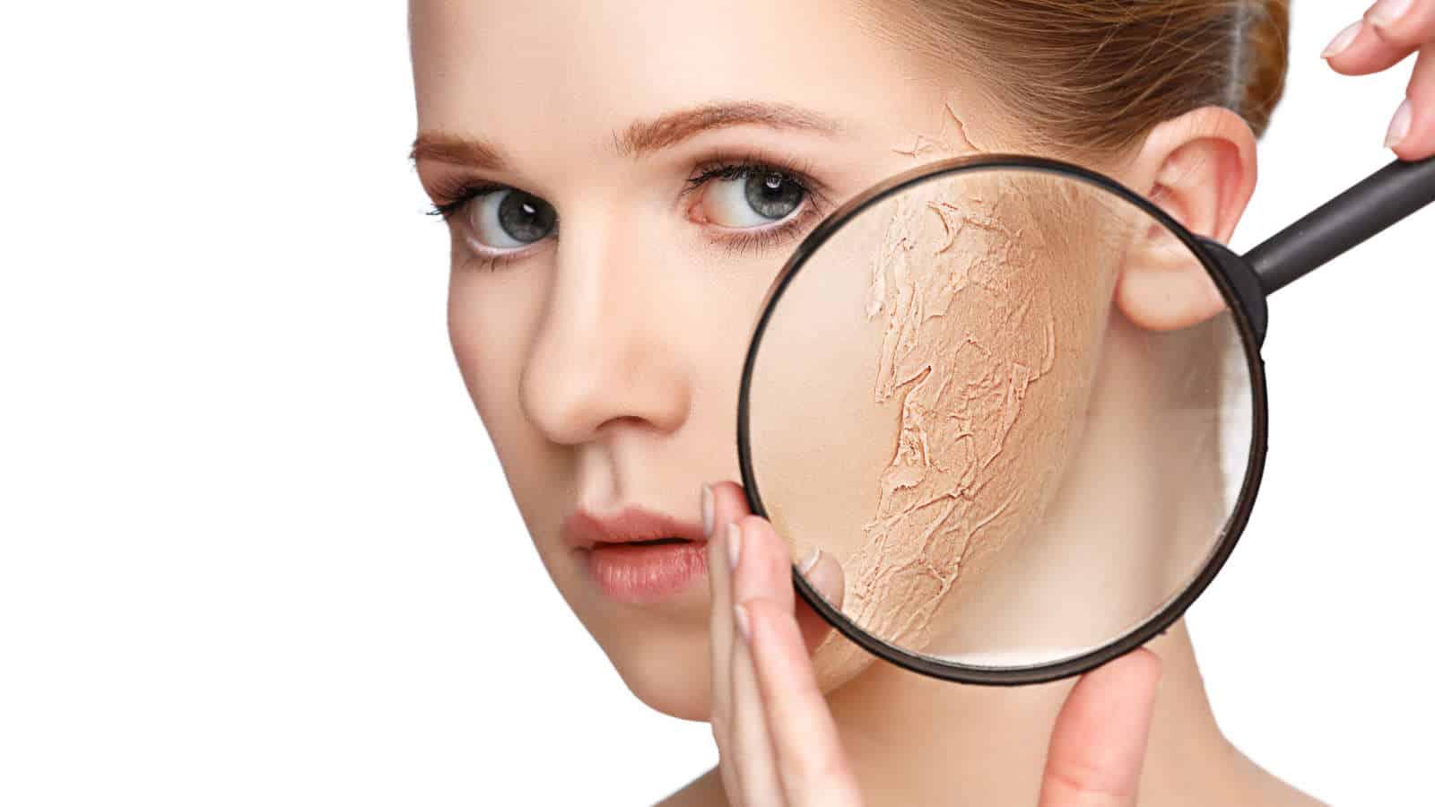 Trockene Haut- Ursachen, Behandlung, Tipps und wie man es loswird