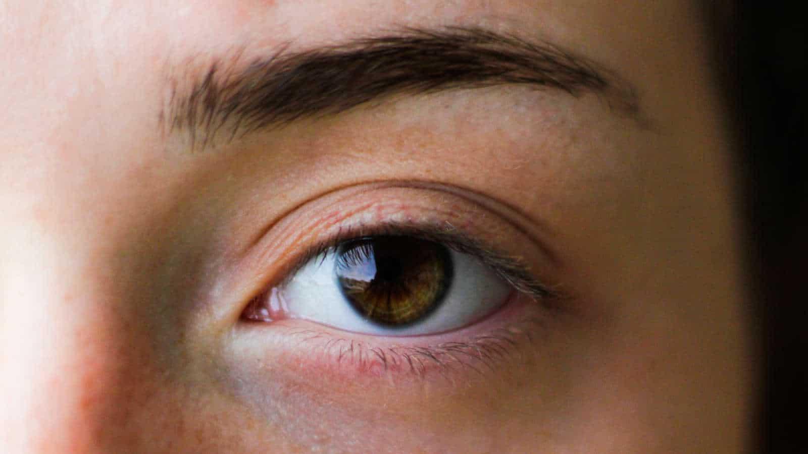 Was ist das beste Mittel gegen Augenringe- 13 Tipps & mehr!
