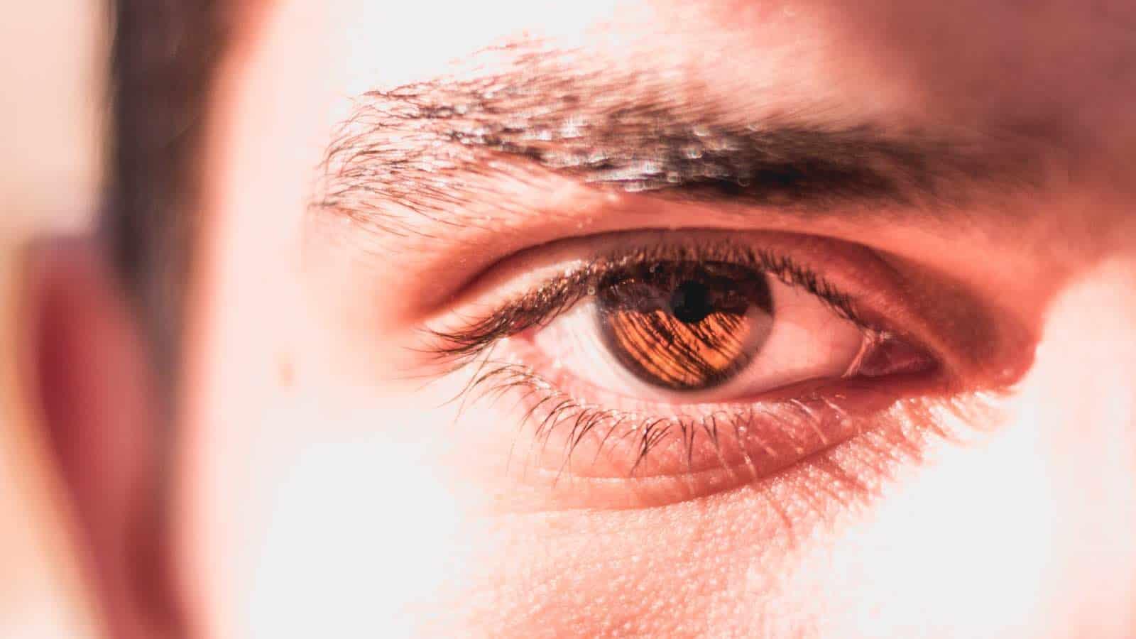 Tränensäcke entfernen- 16 Hausmittel & Tipps, die sofort helfen