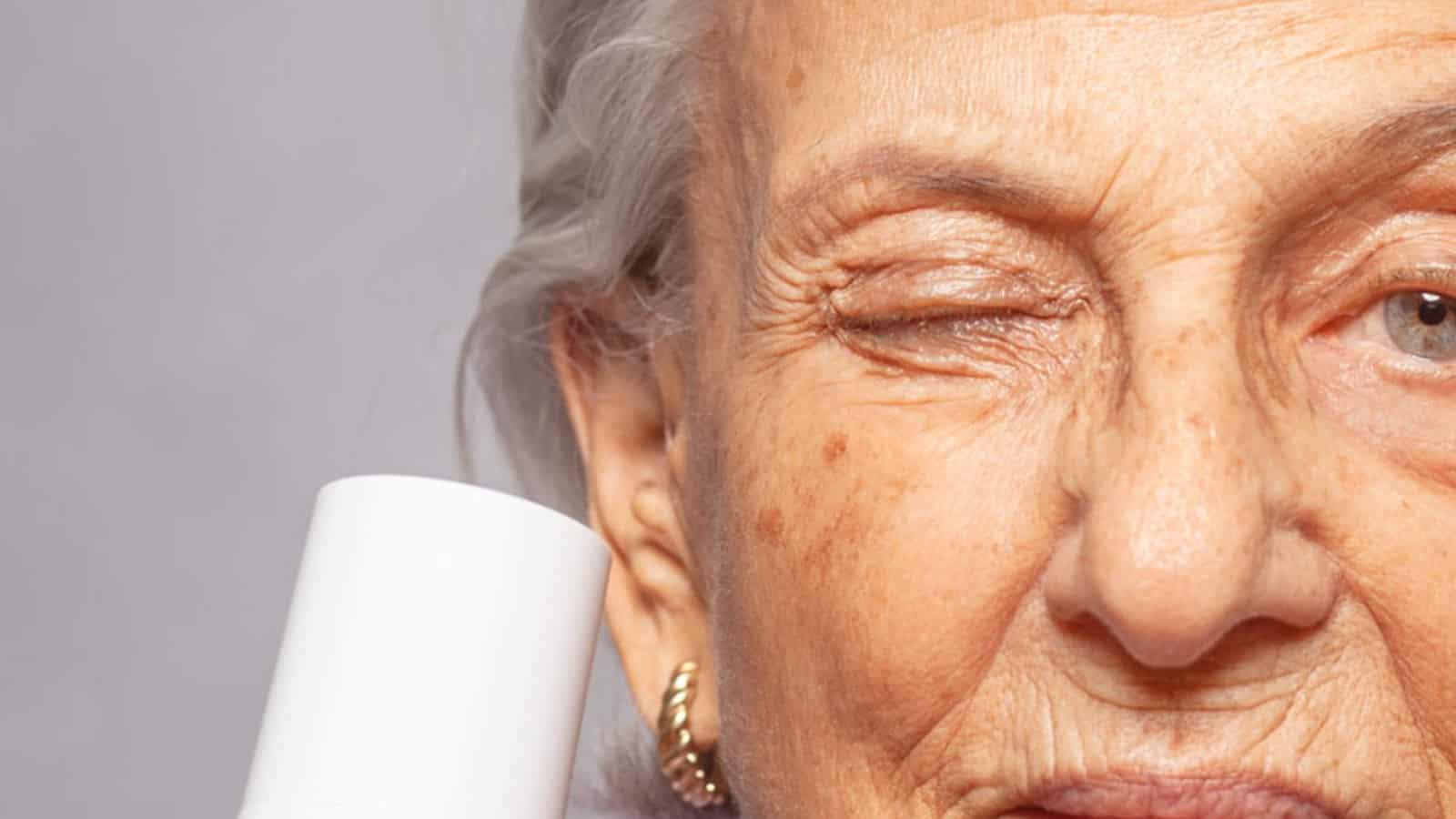 Altersfecken- Ursachen, Symptome und Behandlung